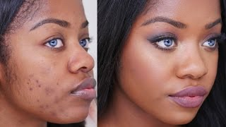 How To Cover Acne Scars on Dark Skin