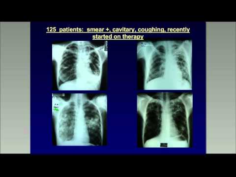 Basics of transmission control in an era of MDR-TB treatment