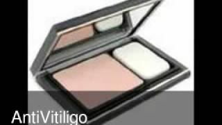 Elizabeth Arden Vitiligo Makeup Thumbnail