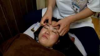 顔面神経麻痺の鍼灸治療。世田谷豪徳寺駅そば、八木整骨院・八木針灸院 ベル麻痺 検索動画 14