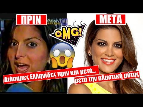 b9fd93dab5b ΣΚΕΦΤΟΜΑΣΤΕ ΕΛΛΗΝΙΚΑ: Διάσημες Ελληνίδες ΠΡΙΝ και ΜΕΤΑ την πλαστική ...