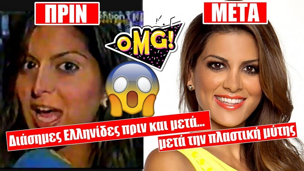 ddbb563656e Διάσημες Ελληνίδες ΠΡΙΝ και ΜΕΤΑ την πλαστική μύτης! (vid) - tromaktiko