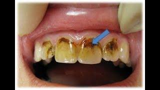 видео Срочная реставрация скола переднего зуба