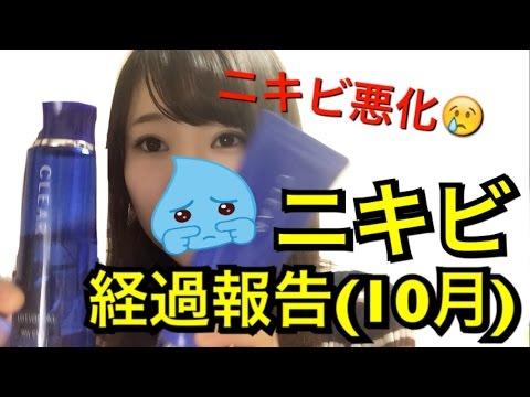 【10月】ニキビ経過報告と最近とスキンケア