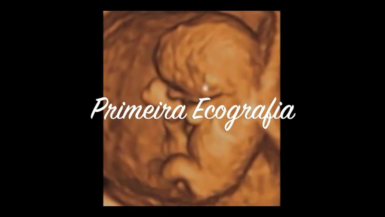 gravidez de 7 semanas tamanho do feto