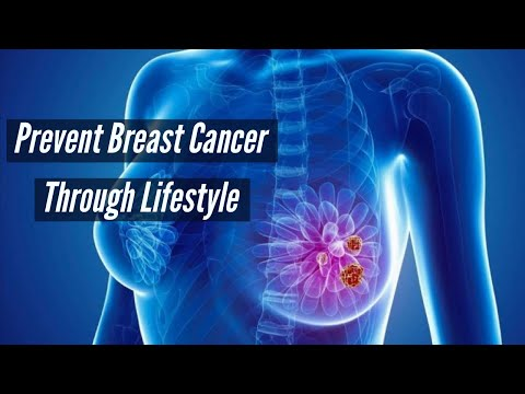 dianne-doyle:-breast-cancer-awareness-month