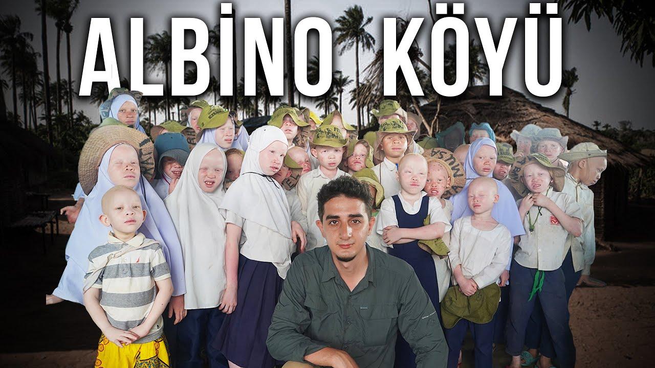 Görüldüğü yerde öldürülen Beyaz Afrikalı Albinoların Gizli Köyünde 1 GÜN GEÇİRMEK!