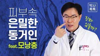 피부에 존재하는 모낭충의 실제 관찰 - 스킨메드 박사톡…