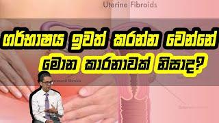 ගර්භාෂය ඉවත් කරන්න වෙන්නෙ මොන කාරනාවක් නිසාද? | Piyum Vila | 27 - 08 -2020 | Siyatha TV Thumbnail