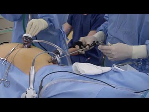 Laparoscopic Right Hemicolectomy