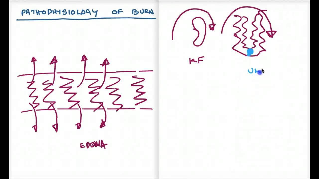 Easy Ways To Understand Pathophysiology Of Burn