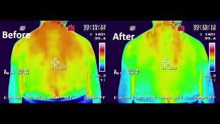Thermal Imaging at Acupuncture Boston - HolliBalance Well-being Center