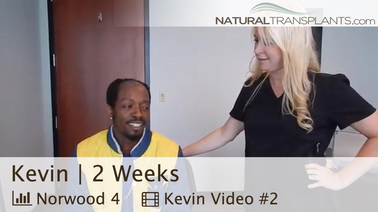 African American Hair Loss Treatment Update   African American Hair Loss Doctors (Kevin)