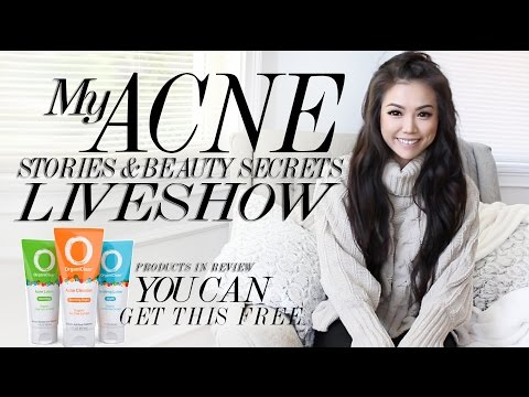 My Acne Stories and Beauty Secrets| X-Chef