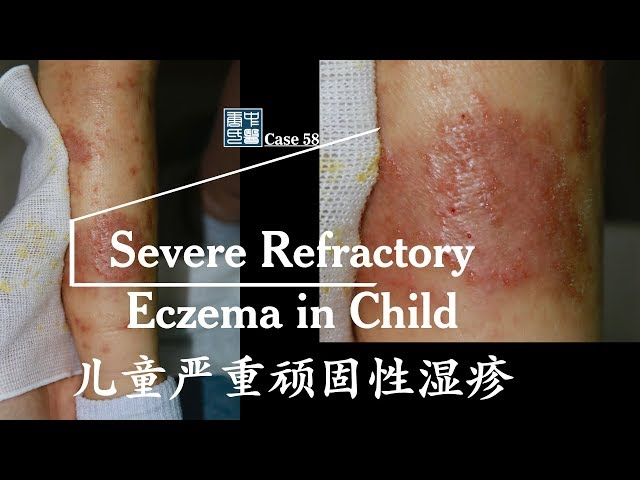 tiny blisters containing clear fluid all over the body, weeping badly, eczema in child, 严重渗出儿童湿疹