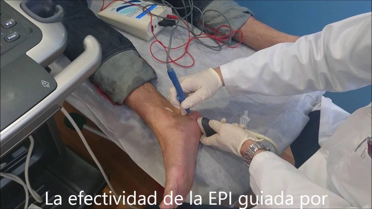 epi fisioterapia efectos secundarios