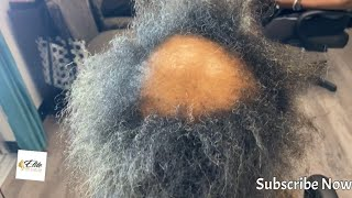 How to fix damaged hair| severe alopecia not fixable but see the transformation