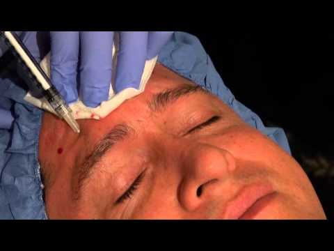 Endopeel Forehead on Male