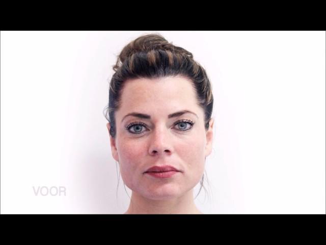 Botox en fillers bij Medikliniek