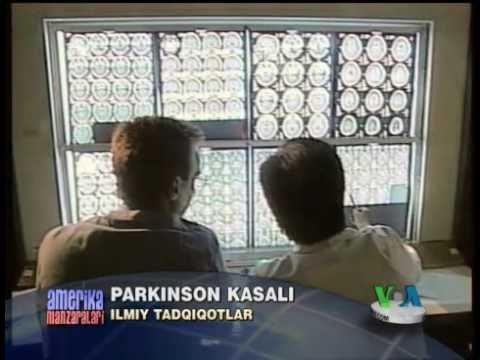 Parkinson kasaliga shifo bormi? Research on Parkinson's disease