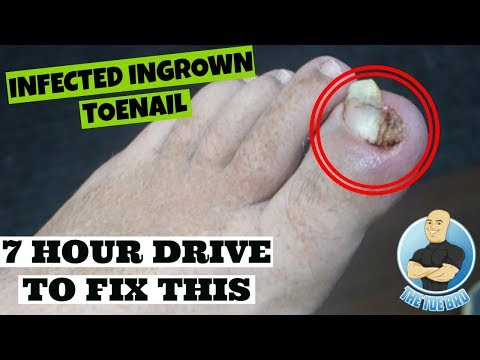 Infected Ingrown Toenail Removed Permanently