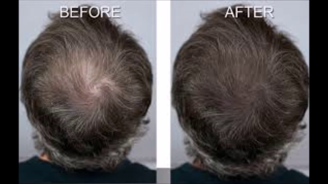 Best Shampoo For Thin Hair And Hair Loss Tips For Hair Growth In Bald Areas Youtube