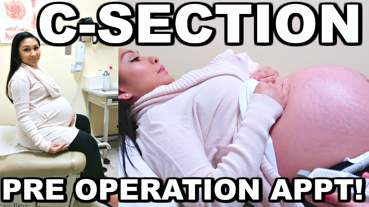 C-SECTION PRE OPERATION APPOINTMENT!