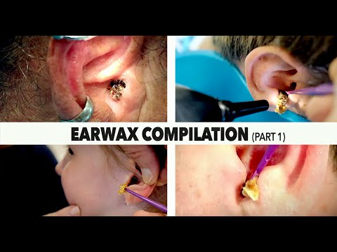 MASSIVE EARWAX REMOVAL COMPILATION (Part 1) | Dr. Paul