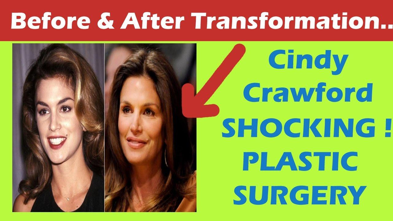Cindy crawford facial