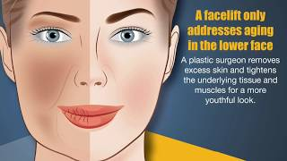 5 Things You Should Know about Facelifts