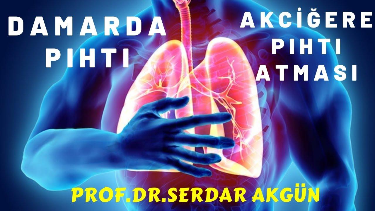 Damarda Pıhtı ve Akciğer embolisi neden olur?