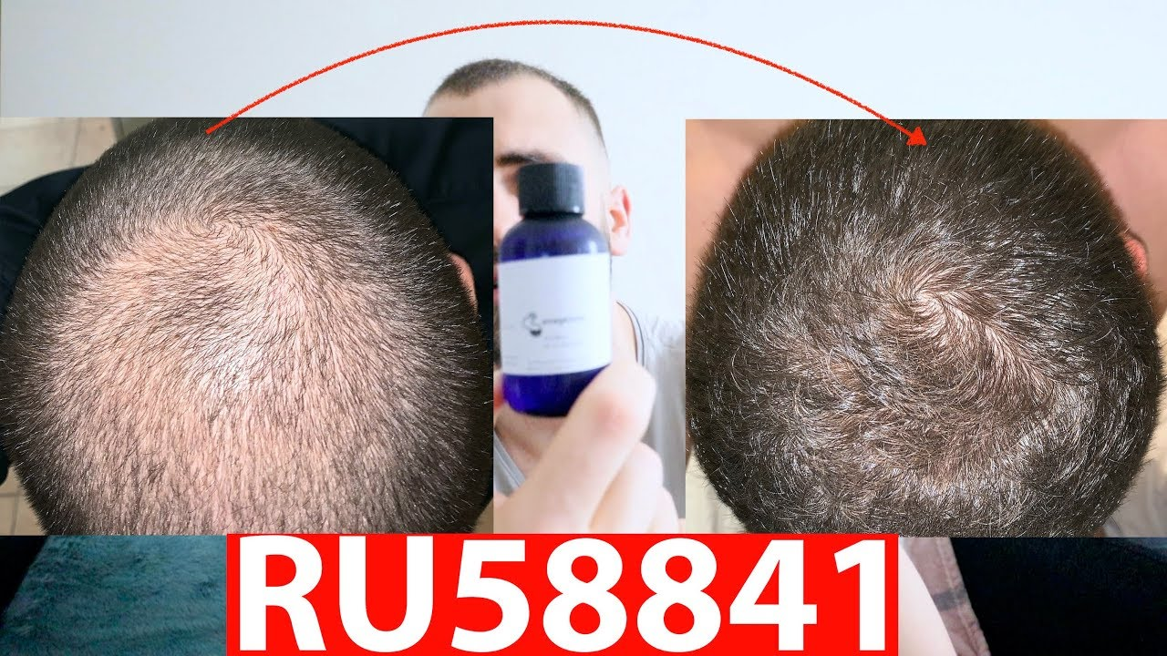 RU58841 – 3 MONTHS AFTER RESULTS! (the cure for hair loss?)