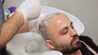 İstanbul Hair Center - Saç Ekimi Sonrası Yıkama Nasıl Yapılır?