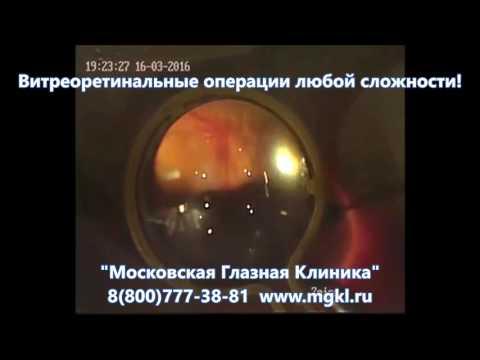 Лазерная коагуляция сетчатки глаза: что это за процедура