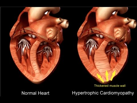 hypotrophic cardiomyopathy Hypertrophic cardiomyopathy: the heart muscle is too thick, which can cause a problem in the way the heart fills with blood and/or how it pumps blood out to the body restrictive cardiomyopathy: the heart muscle becomes very stiff so it is harder for the lower chambers of the heart.
