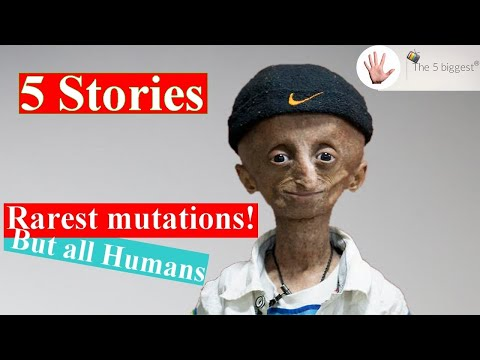 5 Strangest Human Mutations with mysterious causes!~Body Bizarre#5