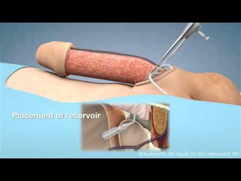 Penile Prosthesis Surgery SCIPP 1