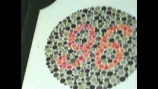 COLOR BLINDNESS TREATMENT,CURED IN INDIA [ Pt No--1 ] BY Dr RISHABH JAIN--Pt NO-1- 09425092329