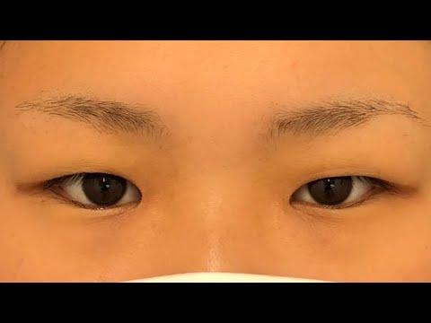 ぶ厚い瞼も平行二重へ。フォーエバー二重術 Dr.鍋による埋没法ビフォーアフター 湘南美容クリニック熊本院