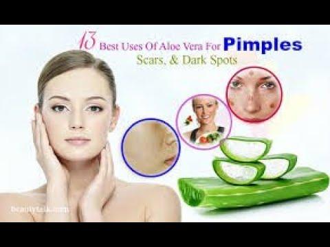 Aloevera to remove blackmarks in face in tamil