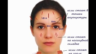 Курсы по косметологической акупунктуре - www.acupuncture.uz