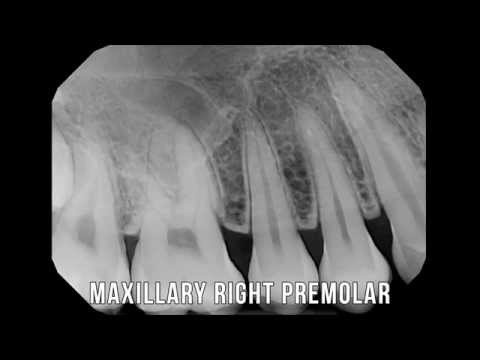 X-Ray lesson series: 1 - Full Mouth X rays