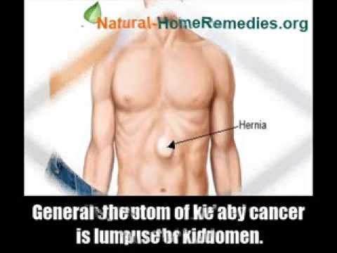 7 Common Kidney Cancer Symptoms