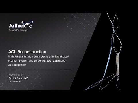 Download ACL Reconstruction