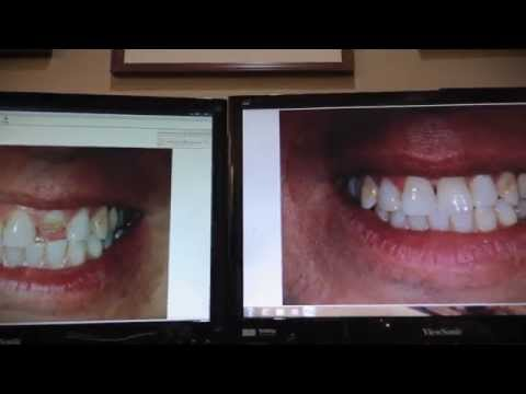 Rhee Dentistry Dental Implant Case, Palm Coast, FL  start to finish