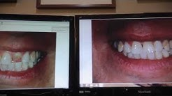 Rhee Dentistry Dental Implant Case, Palm Coast, FL  start to finish