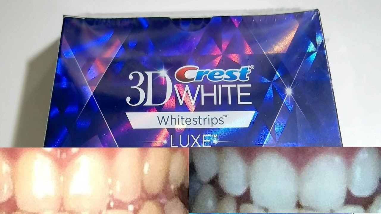 Guy With Yellow Teeth Tests Out Whitening Strips For 20 Days
