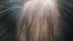 ALOPECIA AREATA TEM CURA!! (Alopecia areata can be cured)