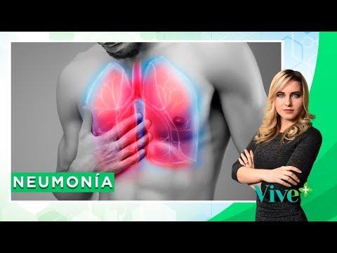 Neumonía: Síntomas, diagnóstico