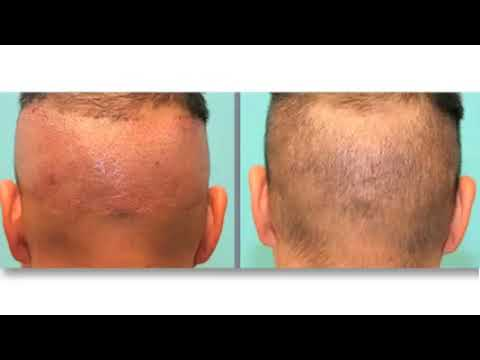 Hair Transplant Strip Method vs. FUE - Follicular Unit Extraction
